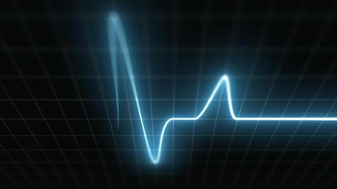 Stylized EKG Fast, Blue Animation