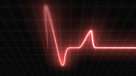 Stylized EKG Fast, Red Animation