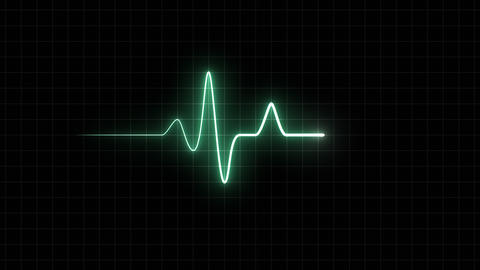 EKG 60 BPM Loop Screen, Green w/ Grid Animation