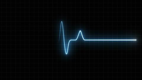EKG 120 BPM Loop Screen, Blue w/ Grid Animation