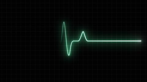 EKG 120 BPM Loop Screen, Green w/ Grid Animation