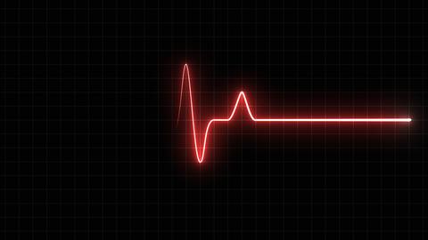 EKG 120 BPM Loop Screen, Red w/ Grid Animation
