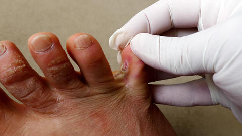 itchy mushroom on toes, fungal diseases in the fingers, itchy fungal diseases Live Action