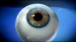 ophthalmology operation Animation