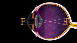 The Eye and Focus - 3D Medical Animation Animation
