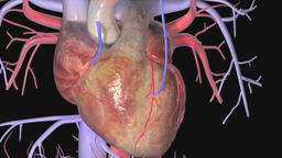 Coronary Artery Bypass Grafting (CABG) Footage