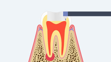 Jaw Surgery. Resection of the tooth. 2D animation After Effects Template