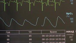 Cardiogram of rhythm of heart and pulse image on monitor during operation 영상물