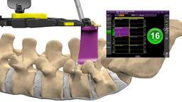 Backbone Laminectomy Degenerative Dics Disease Footage