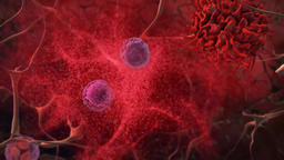 Lymphoma Cancer Cells Footage