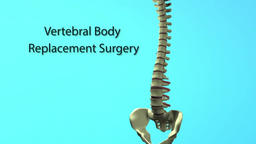 Spinal Animation Vertebral Body Footage