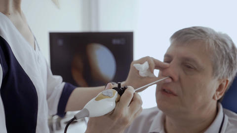 Doctor examine nose of patient with ENT telescope Footage