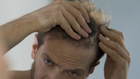 Bearded man standing in front of mirror and looking at his thinning hair, bald Footage