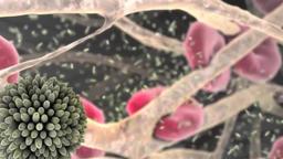 Coronary atherosclerotic disease 3D animation Footage