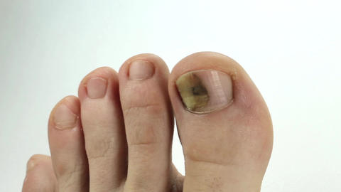 Toenails with fungal infection. Sick nail. Fungus of big toe Live Action