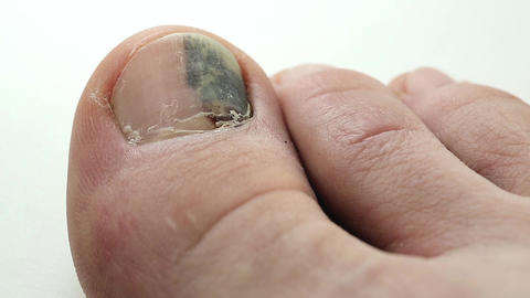 Trauma of toenail. Subungual hematoma Footage