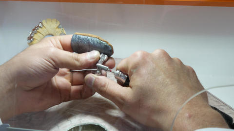 Dental technician polishing a metal frame aligns the surface of the metal ビデオ