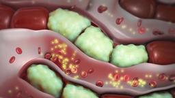 Hcv - A Group Of Dangerous Hepatitis C Viruses Footage