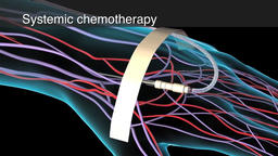 3D Animation of Systemic chemotheraphy - reginal chemotherapy Footage