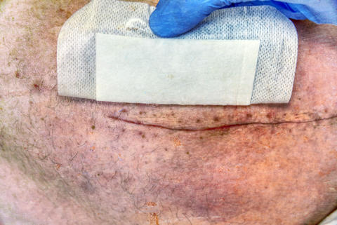 Detail of skin with deep chirurgical cut. Health care in hospital. Hipster フォト