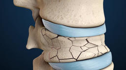 3D animation of the spine fracture Footage