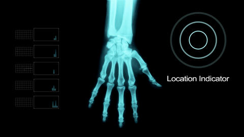 Scaning Hand Under X- Ray with Elements Footage