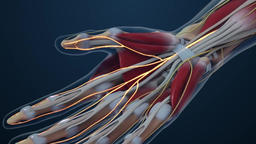 Carpal tunnel syndrome (CTS) animation Footage