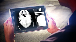 Brain Scan on iPad Footage