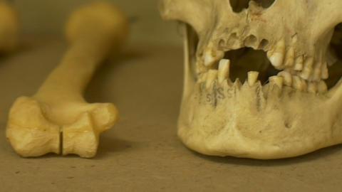 Old Human Skull Teeth GIF