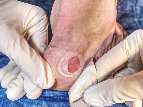 Small surgery on hurt leg, treatment of the wetting wound Fotografía