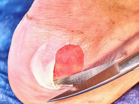 Nurse cleaning dead skin on patient leg with spike scissors Fotografía