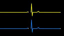 4K Heart Monitor EKG Screens Pulse Trace Footage