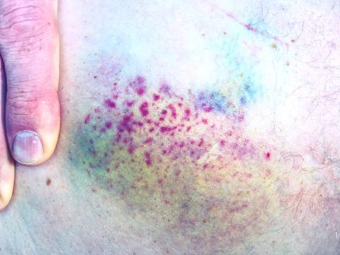 Hand embracing injured leg with painful hematoma フォト