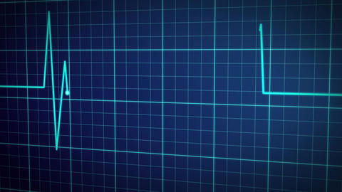 EKG Pulse Display Animation