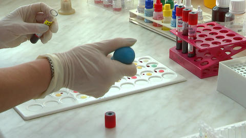 The doctor adds reagents for analysis on the blood group Footage