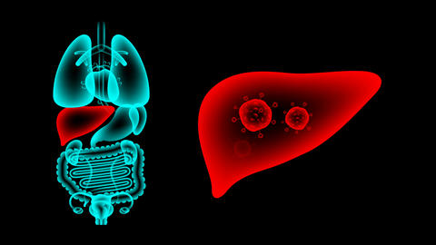 Human Female Organs X-ray set, Liver infection concept idea red color Animation