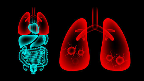Human Female Organs X-ray set, Lung infection concept idea red color Animation