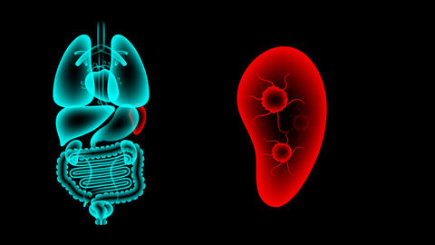 Human Male Organs X-ray set, Spleen infection concept idea red color Animation