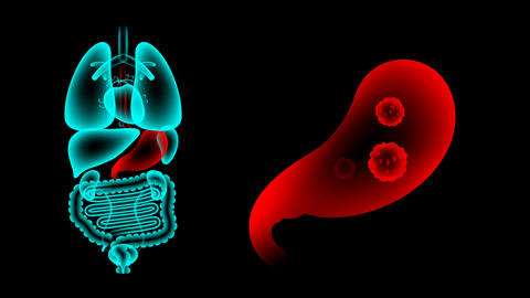 Human Male Organs X-ray set, Stomach infection concept idea red color Animation