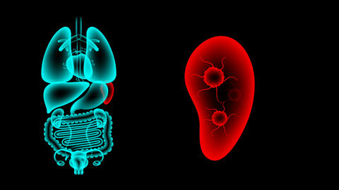 Human Female Organs X-ray set, Spleen infection concept idea red color Animation