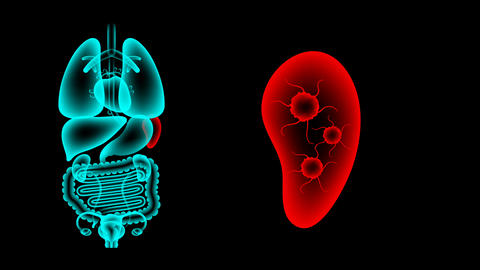 Human Female Organs X-ray set, Spleen infection concept... Stock Video Footage