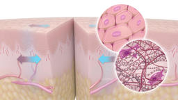 Skin Disease Graphic Animation Footage