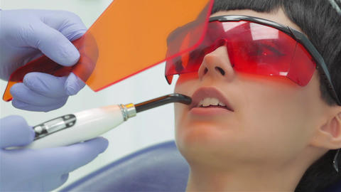 Dentist shines ultraviolet photopolymer seal on fixing it Footage