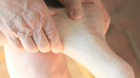 Man rubbing foot with dry skin Live Action