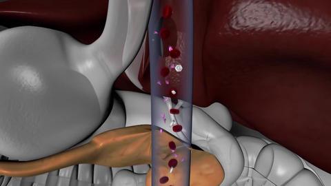 glucose-compensating pancreas Live Action
