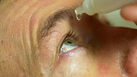man putting eye drops in his eyes Footage