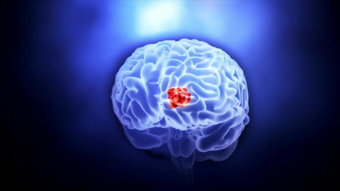 Video of a Tumor in Human Brain Stock Video Footage