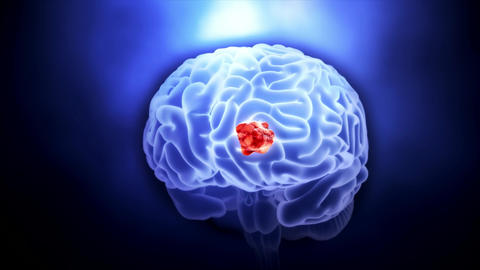 Video of a Tumor in Human Brain Footage