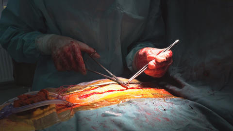 Wire seams with many surgical clamps close-up after the cardiac surgery ビデオ