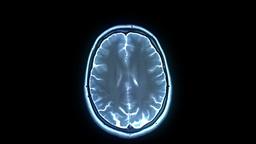 MRI scan Animación